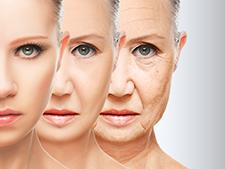 Lifting cervico facial : découvrez une nouvelle technique de correction chirurgicale de la peau du cou et du visage